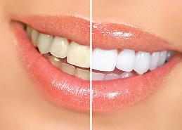 gallery/whiter teeth logo cropped 1